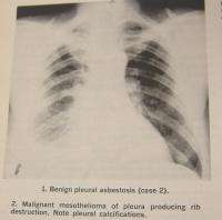 Medical Book Asbestos Bodies in Human Lungs at Autopsy